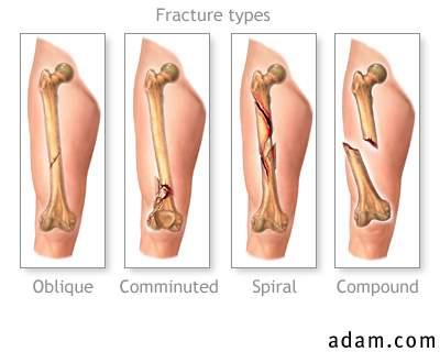 fracture02.jpg